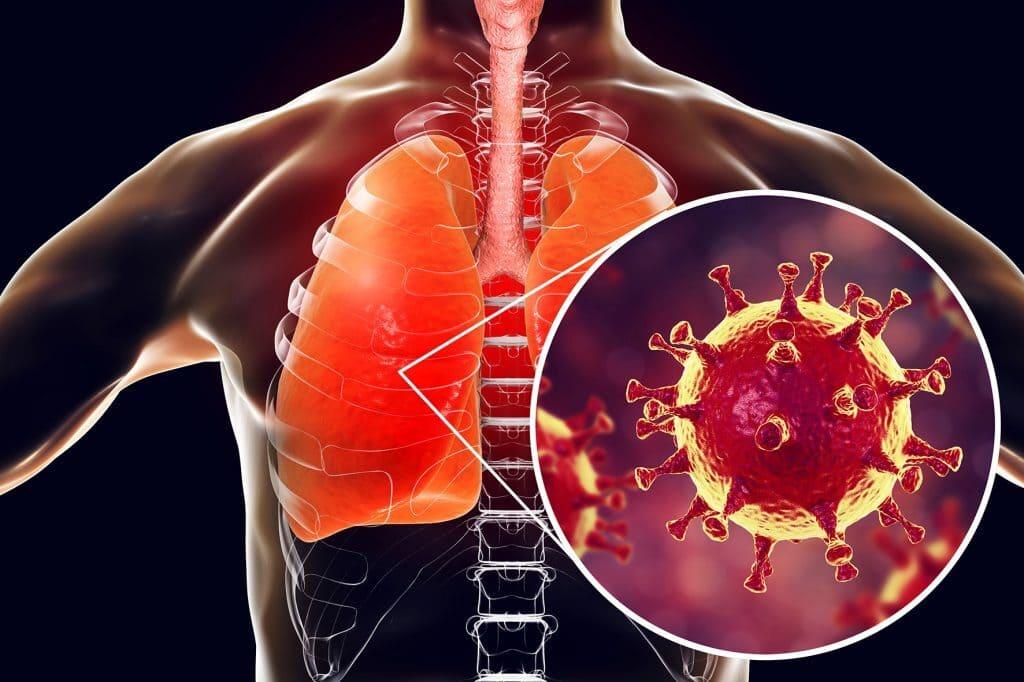 Vilka är symtomen på MERS?